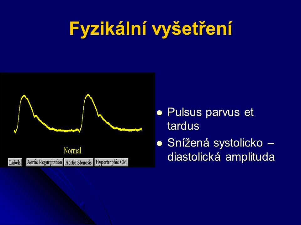 Fyzikální vyšetření Pulsus parvus et tardus