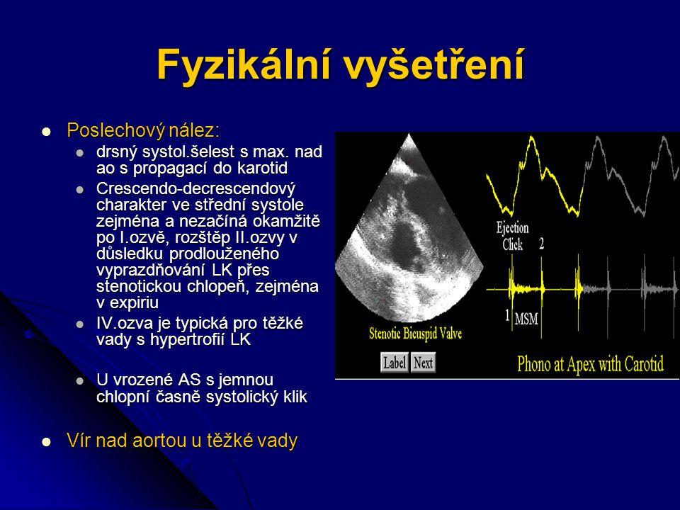 Fyzikální vyšetření Poslechový nález: Vír nad aortou u těžké vady