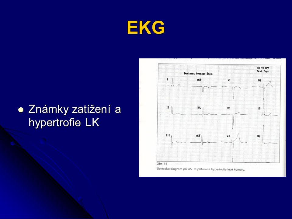 EKG Známky zatížení a hypertrofie LK