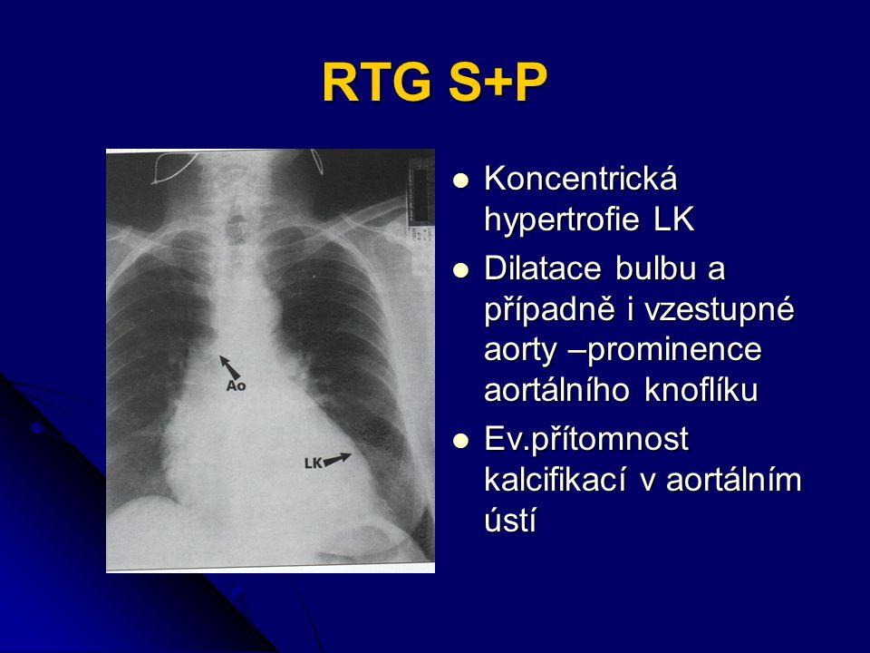 RTG S+P Koncentrická hypertrofie LK