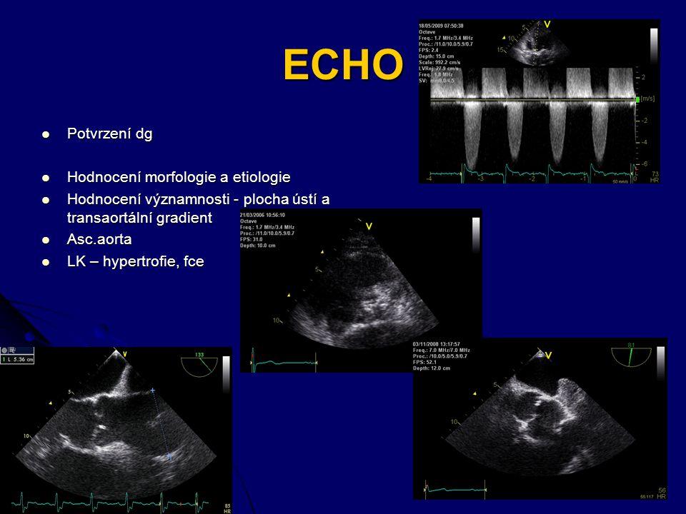 ECHO Potvrzení dg Hodnocení morfologie a etiologie