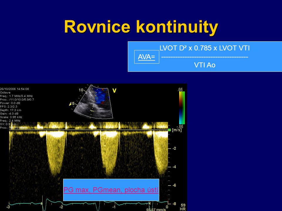 Rovnice kontinuity LVOT D² x 0.785 x LVOT VTI