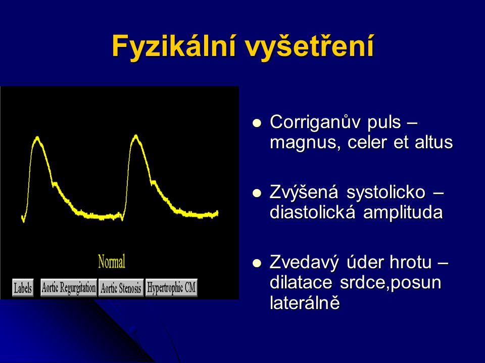 Fyzikální vyšetření Corriganův puls – magnus, celer et altus