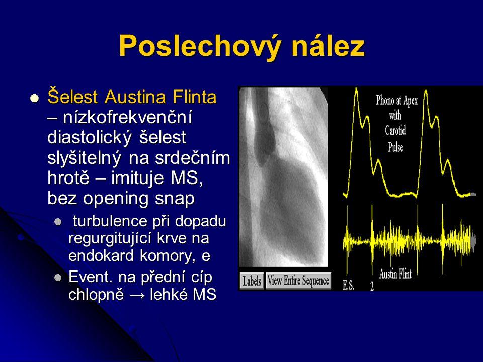 Poslechový nález Šelest Austina Flinta – nízkofrekvenční diastolický šelest slyšitelný na srdečním hrotě – imituje MS, bez opening snap.