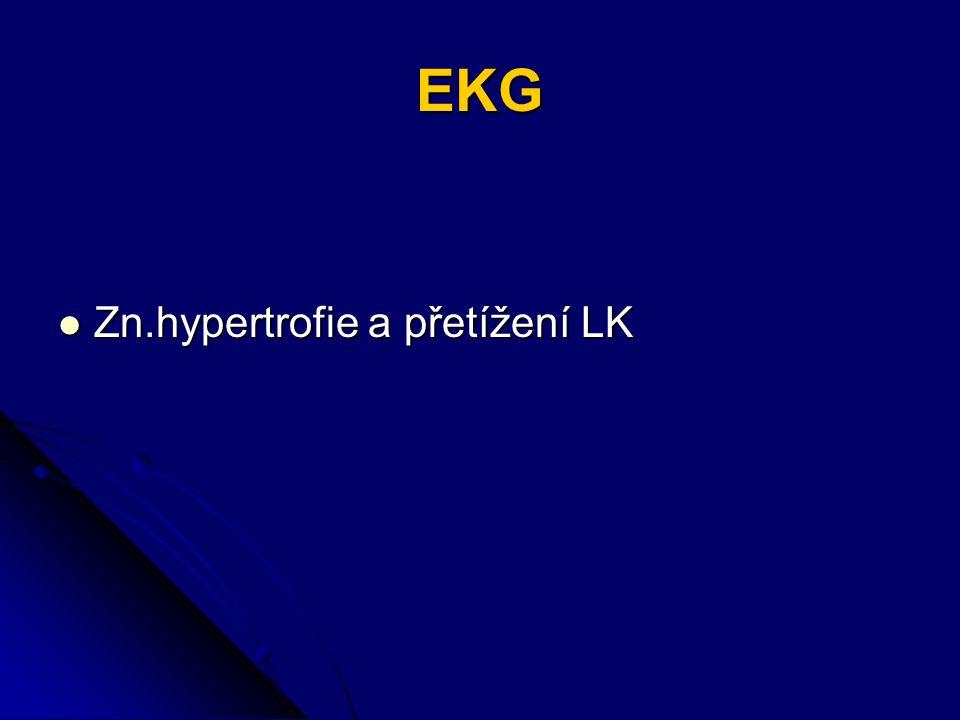 EKG Zn.hypertrofie a přetížení LK