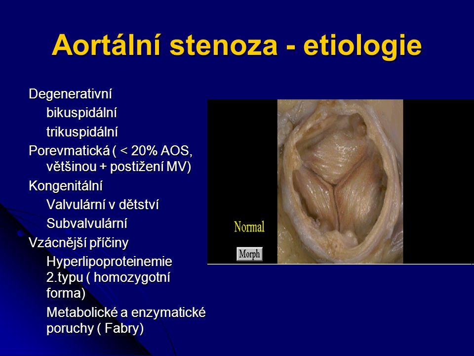 Aortální stenoza - etiologie
