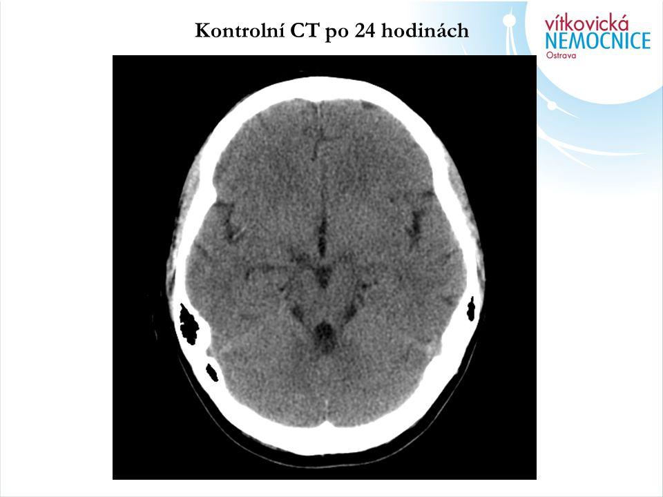 Kontrolní CT po 24 hodinách