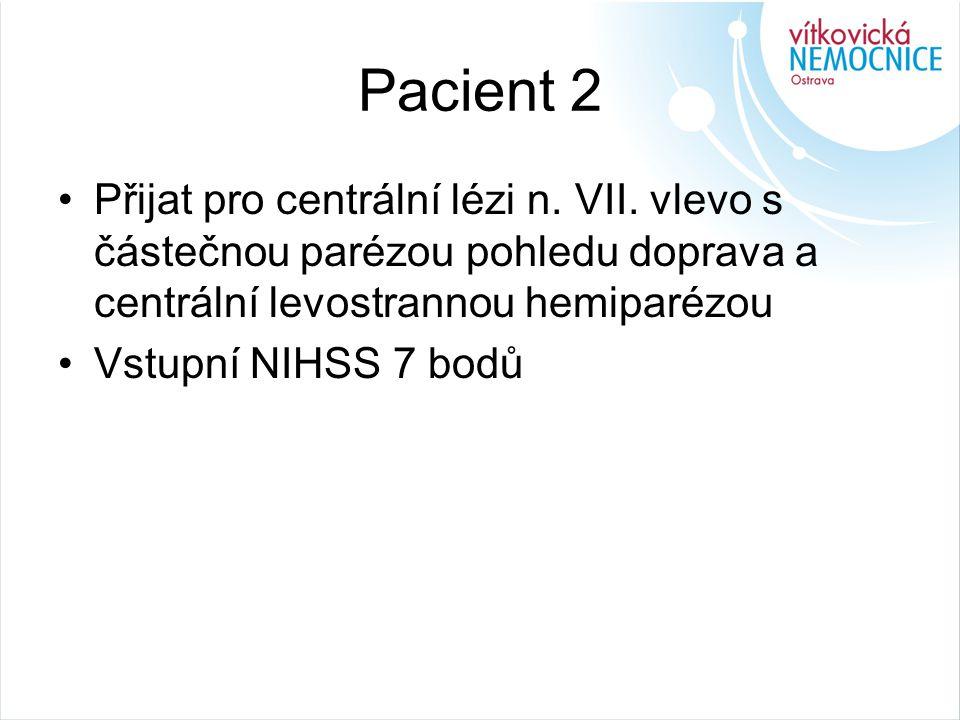 Pacient 2 Přijat pro centrální lézi n. VII. vlevo s částečnou parézou pohledu doprava a centrální levostrannou hemiparézou.
