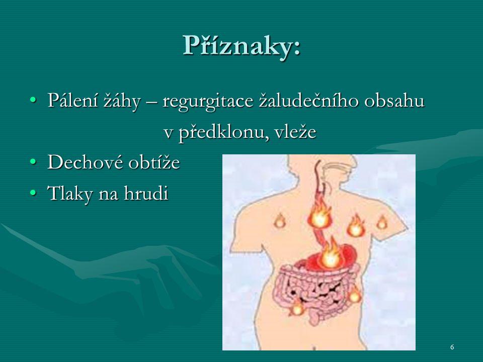 Příznaky: Pálení žáhy – regurgitace žaludečního obsahu