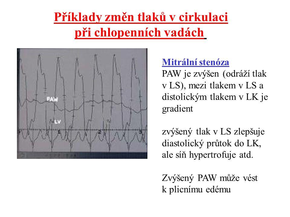 Příklady změn tlaků v cirkulaci při chlopenních vadách
