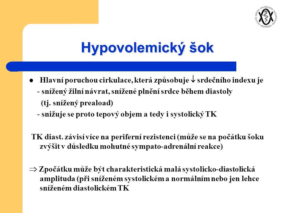 Hypovolemický šok Hlavní poruchou cirkulace, která způsobuje  srdečního indexu je. - snížený žilní návrat, snížené plnění srdce během diastoly.