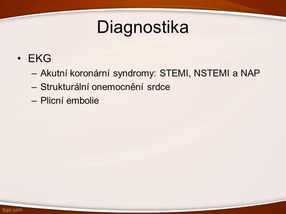 Diagnostika EKG Akutní koronární syndromy: STEMI, NSTEMI a NAP