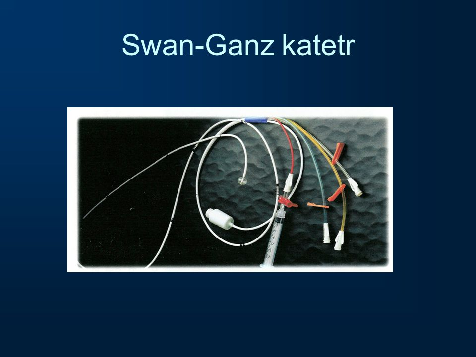 Swan-Ganz katetr