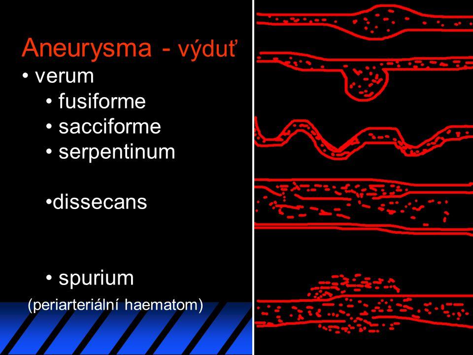 Aneurysma - výduť verum fusiforme sacciforme serpentinum dissecans