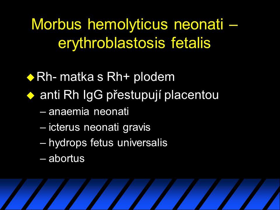 Morbus hemolyticus neonati – erythroblastosis fetalis