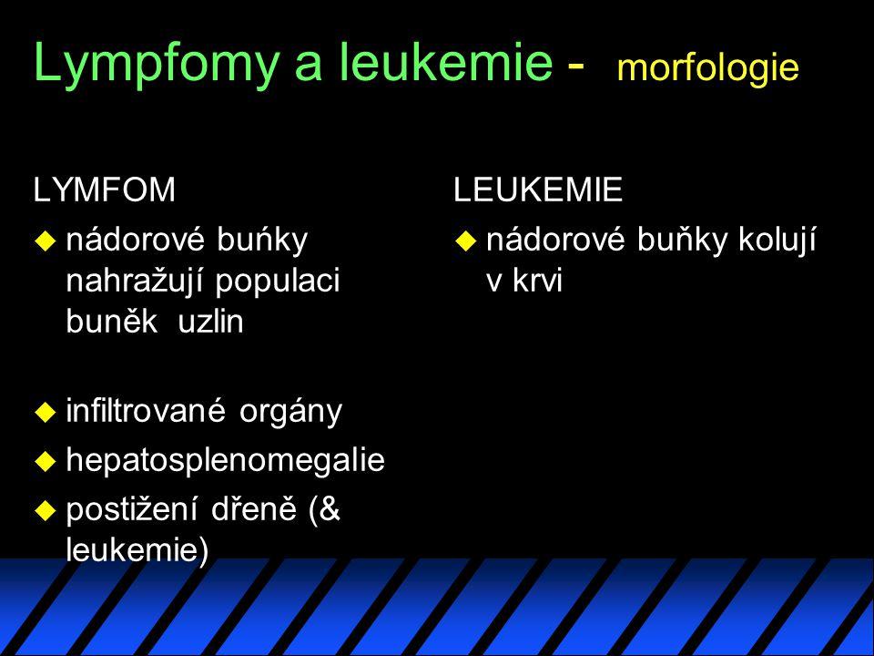Lympfomy a leukemie - morfologie