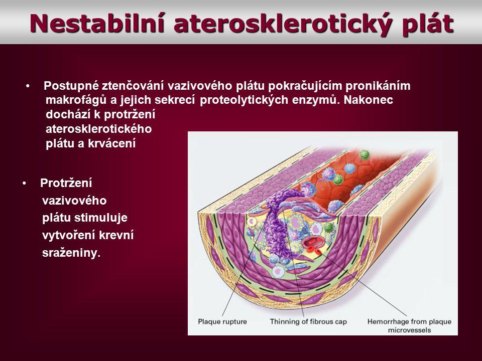 Nestabilní aterosklerotický plát
