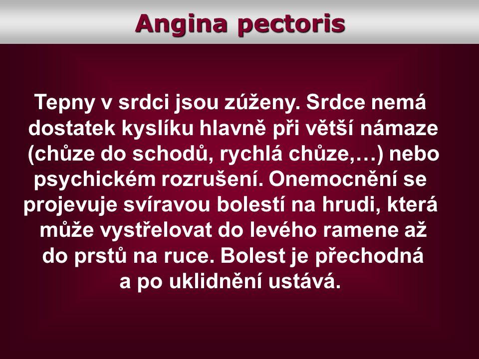 Angina pectoris Tepny v srdci jsou zúženy. Srdce nemá
