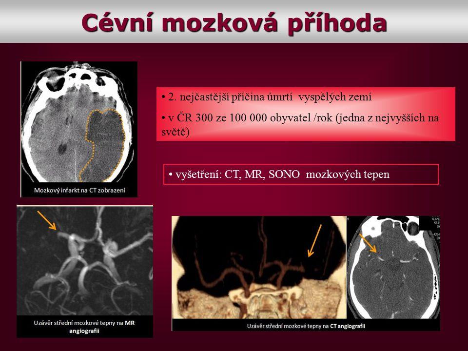 Cévní mozková příhoda 2. nejčastější příčina úmrtí vyspělých zemí