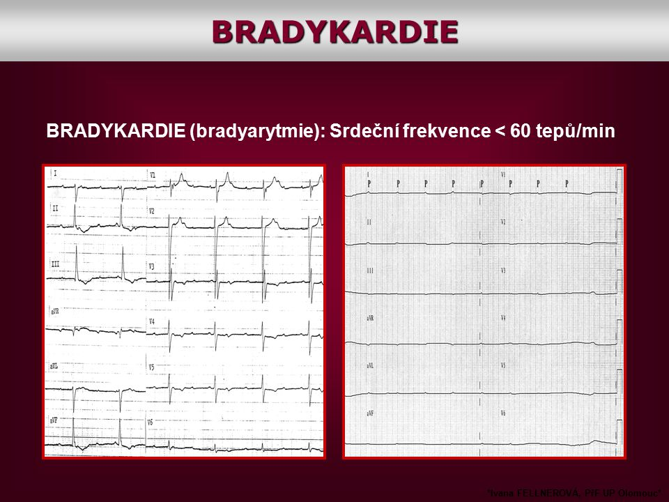 BRADYKARDIE BRADYKARDIE (bradyarytmie): Srdeční frekvence < 60 tepů/min.