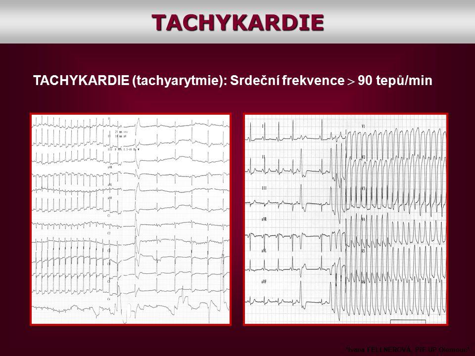 TACHYKARDIE TACHYKARDIE (tachyarytmie): Srdeční frekvence  90 tepů/min.