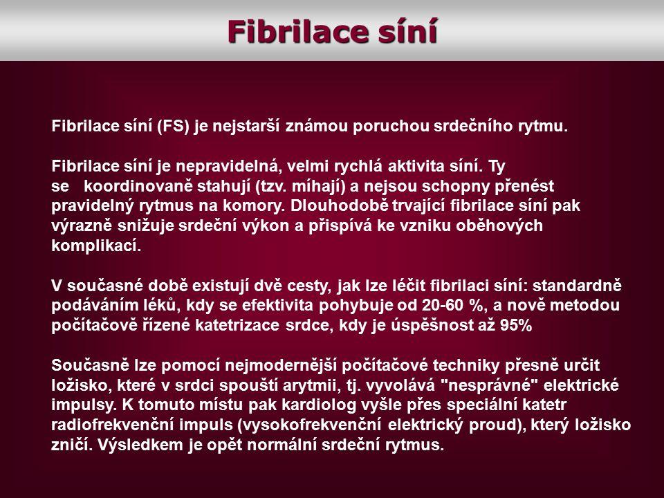 Fibrilace síní Fibrilace síní (FS) je nejstarší známou poruchou srdečního rytmu.