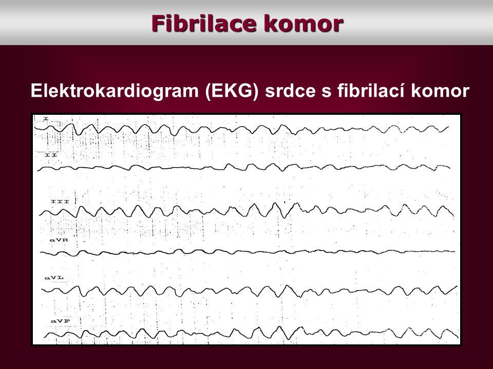 Fibrilace komor Elektrokardiogram (EKG) srdce s fibrilací komor