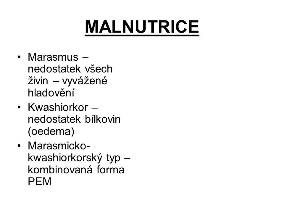 MALNUTRICE Marasmus – nedostatek všech živin – vyvážené hladovění