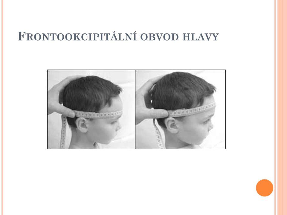 Frontookcipitální obvod hlavy