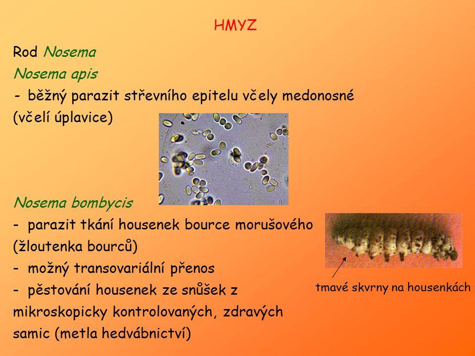 - běžný parazit střevního epitelu včely medonosné (včelí úplavice)