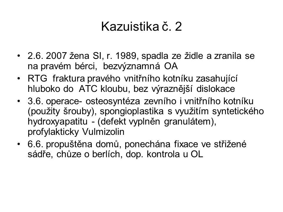 Kazuistika č. 2 2.6. 2007 žena SI, r. 1989, spadla ze židle a zranila se na pravém bérci, bezvýznamná OA.