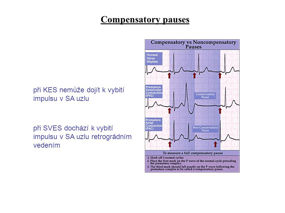 Compensatory pauses při KES nemůže dojít k vybití impulsu v SA uzlu