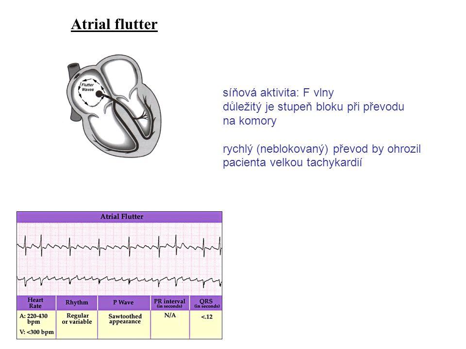 Atrial flutter síňová aktivita: F vlny