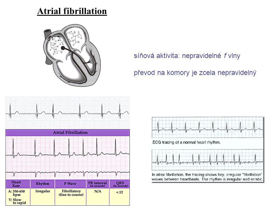 Atrial fibrillation síňová aktivita: nepravidelné f vlny