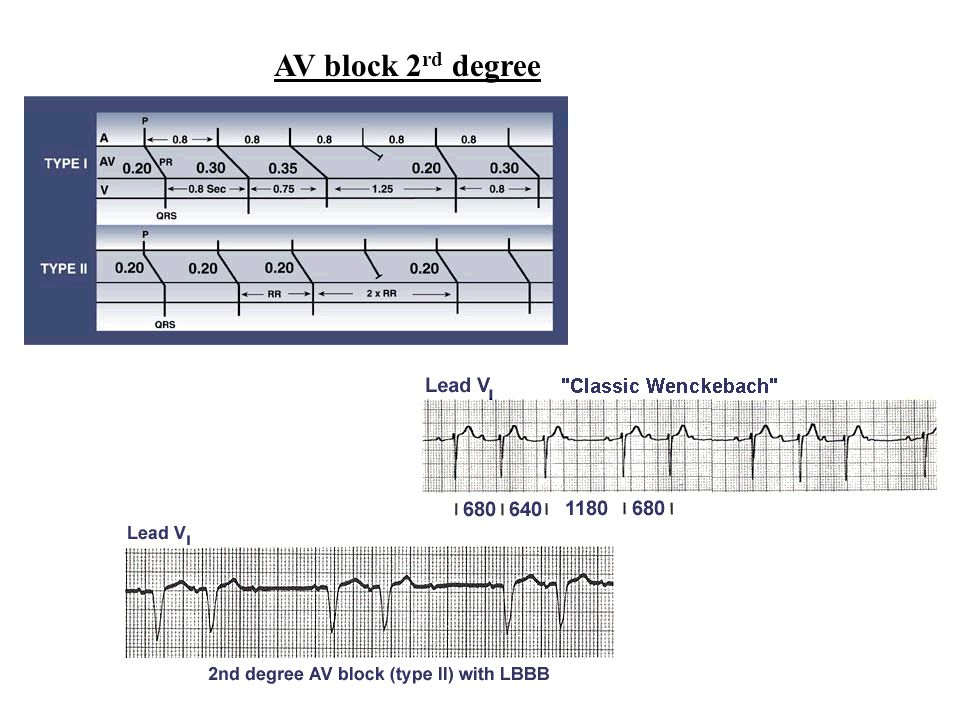 AV block 2rd degree