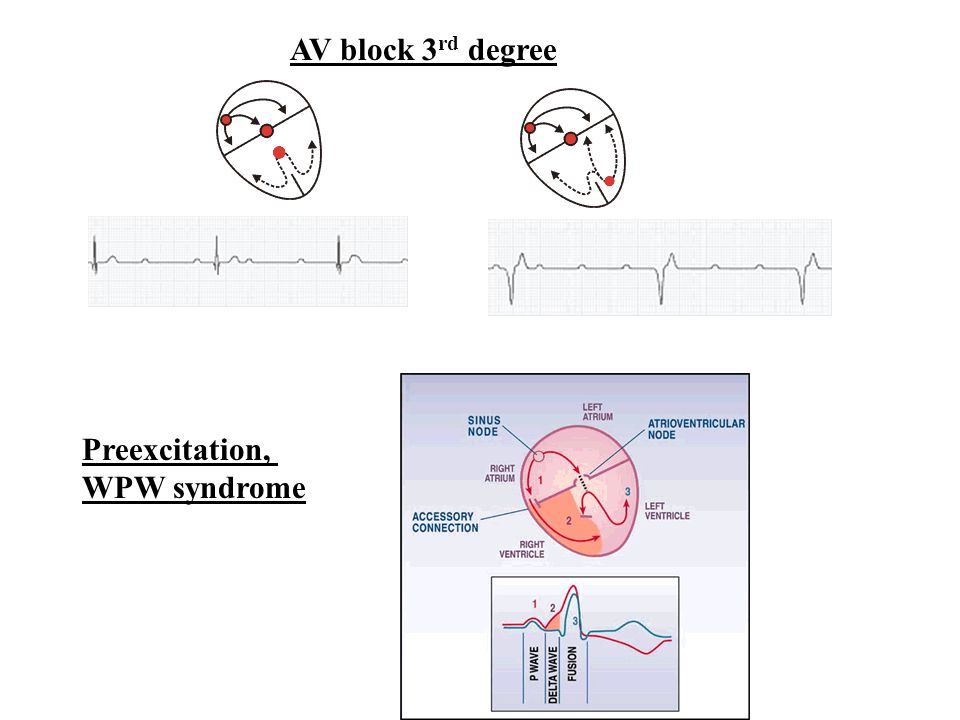 AV block 3rd degree Preexcitation, WPW syndrome
