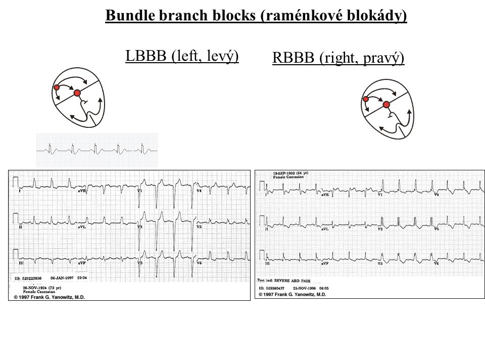Bundle branch blocks (raménkové blokády)