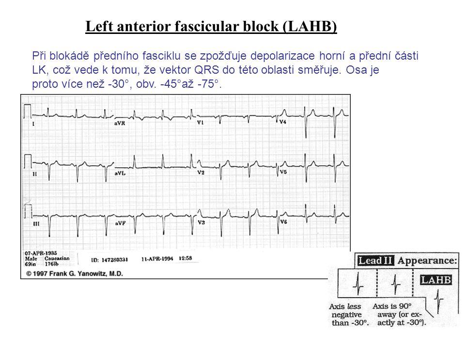 Left anterior fascicular block (LAHB)