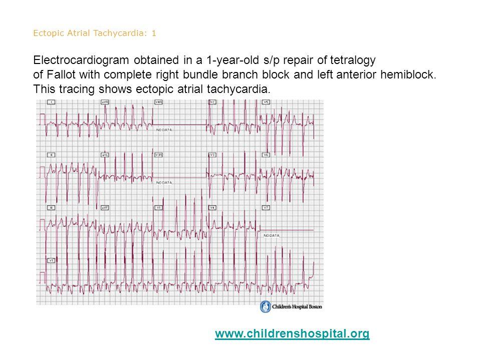 Ectopic Atrial Tachycardia: 1