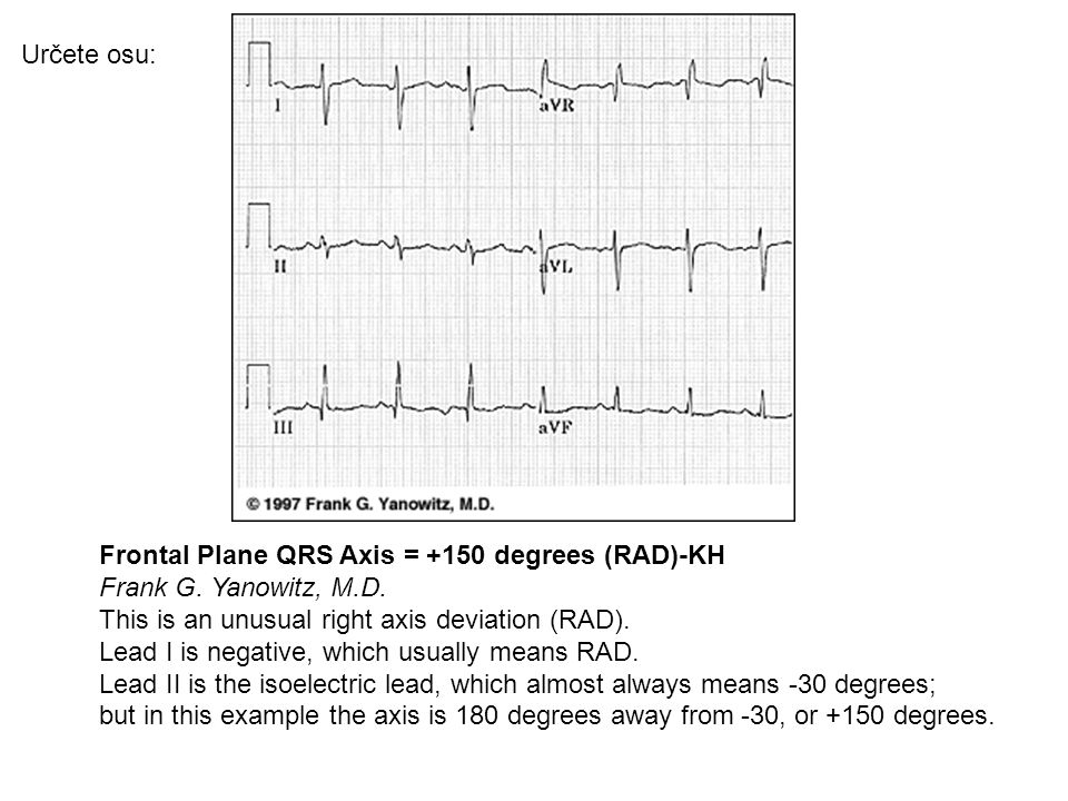 Určete osu: Frontal Plane QRS Axis = +150 degrees (RAD)-KH.