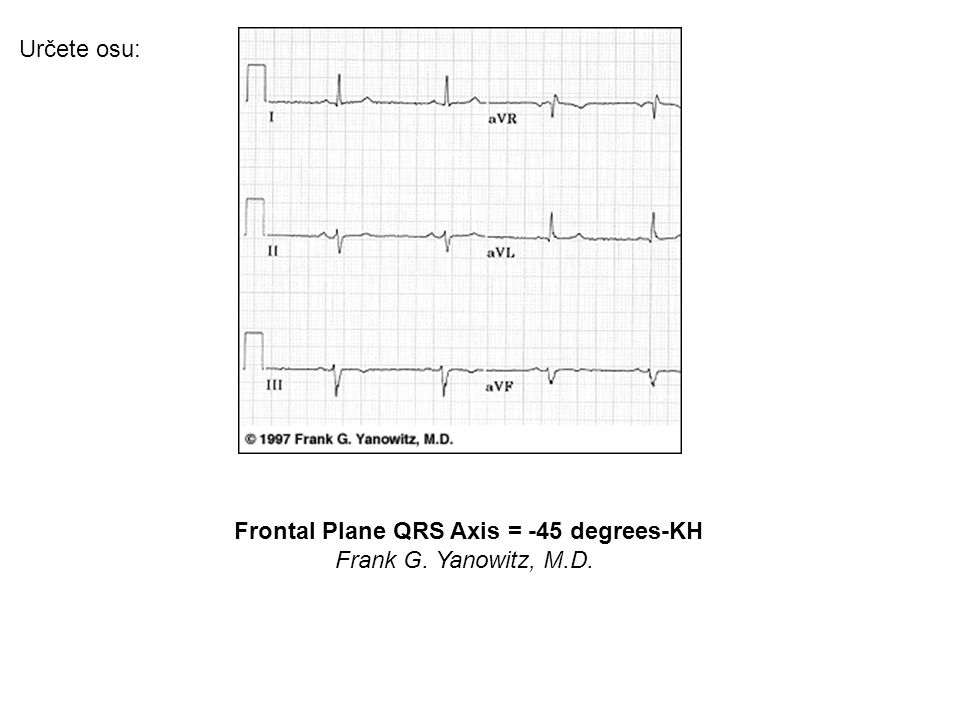 Frontal Plane QRS Axis = -45 degrees-KH
