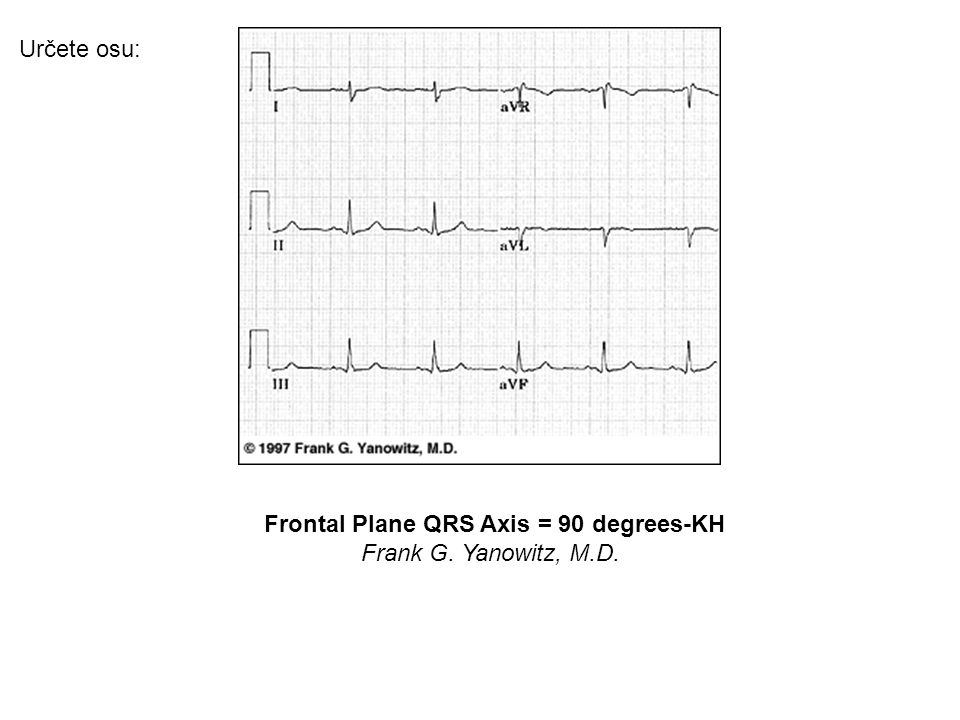 Frontal Plane QRS Axis = 90 degrees-KH