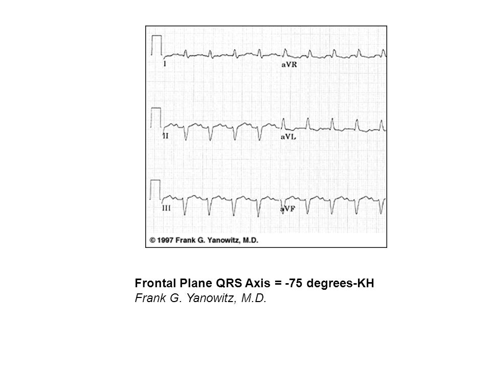 Frontal Plane QRS Axis = -75 degrees-KH