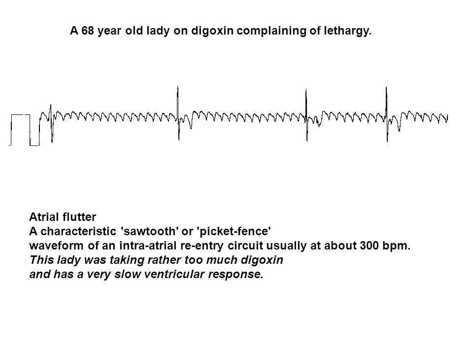 A 68 year old lady on digoxin complaining of lethargy.