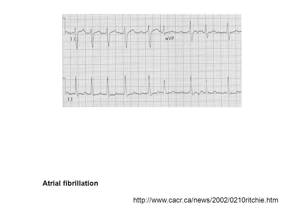 Atrial fibrillation http://www.cacr.ca/news/2002/0210ritchie.htm