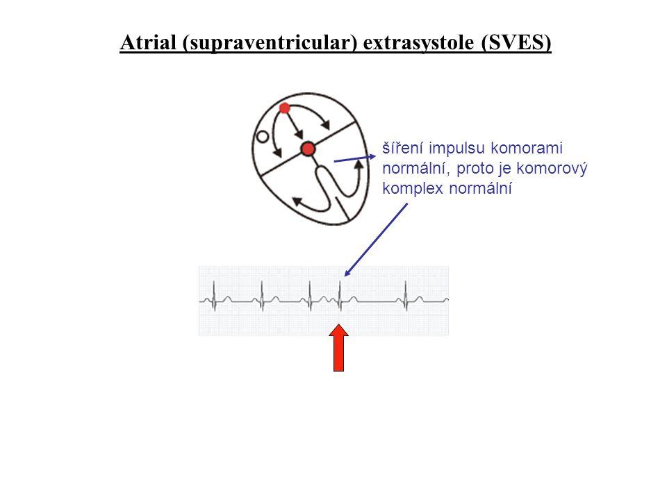 Atrial (supraventricular) extrasystole (SVES)