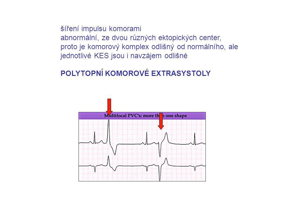 šíření impulsu komorami abnormální, ze dvou různých ektopických center, proto je komorový komplex odlišný od normálního, ale jednotlivé KES jsou i navzájem odlišné