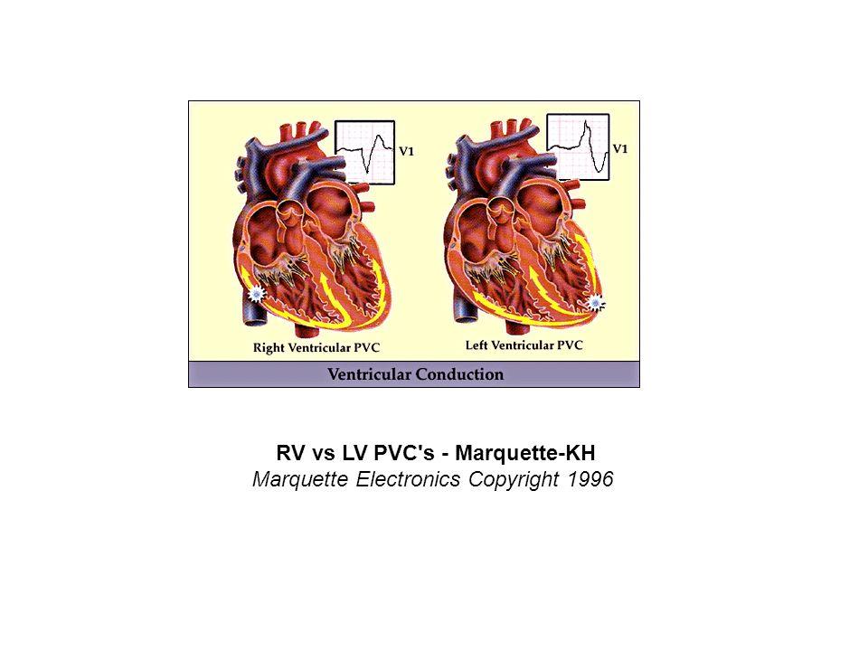 RV vs LV PVC s - Marquette-KH