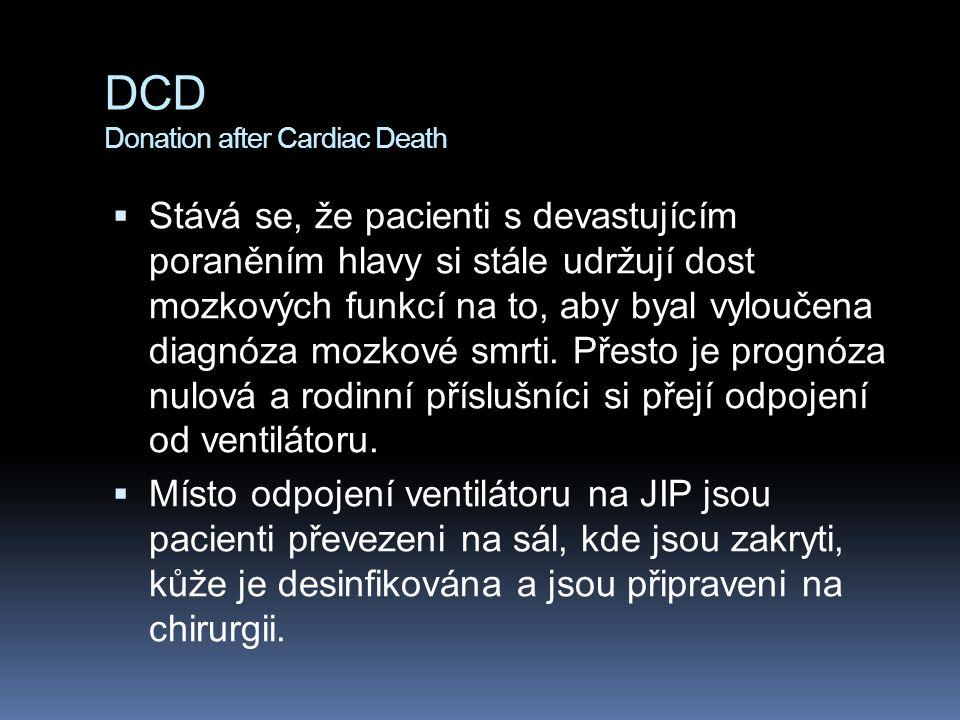 DCD Donation after Cardiac Death