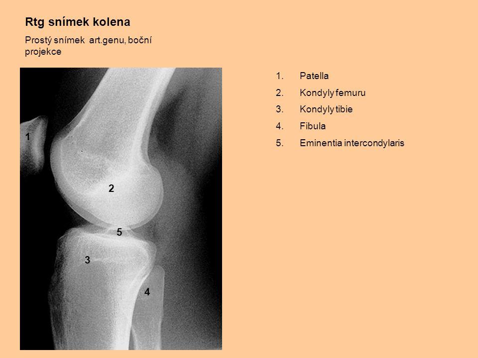 Rtg snímek kolena 1 2 5 3 4 Prostý snímek art.genu, boční projekce